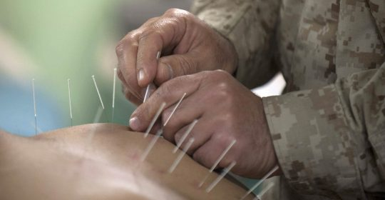 Acupuncture treatment in patients with neuroophtalmology